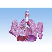 paru-paru.jpg